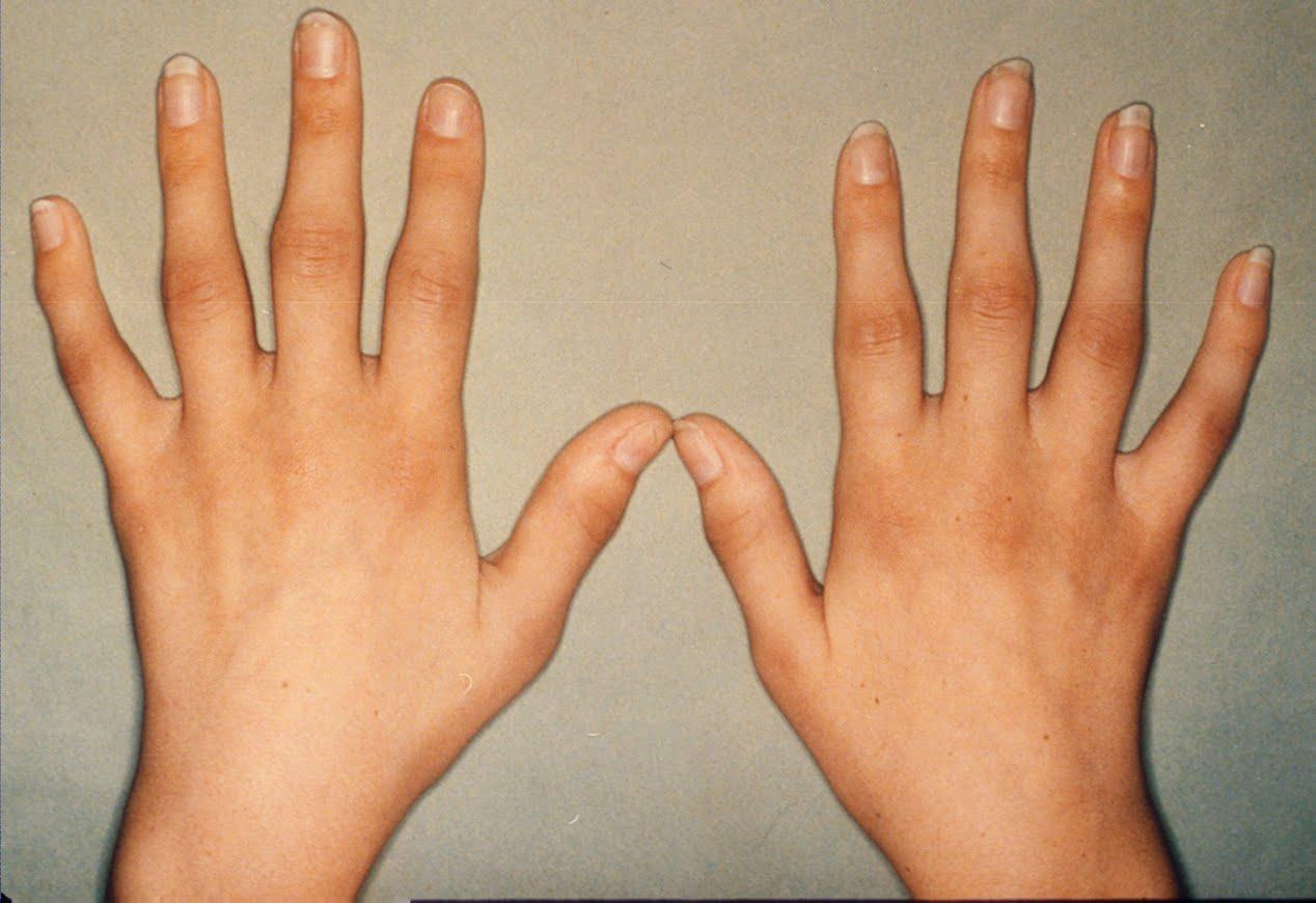darmwandentzündung symptome
