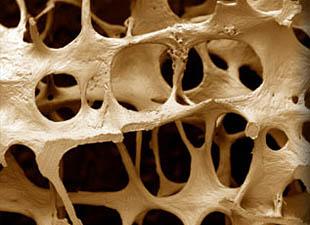 osteoporosia
